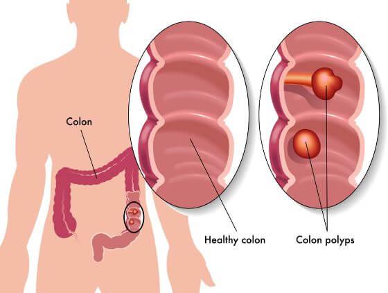 colon-polyps-cape-town