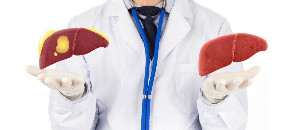 Fatty Liver Disease: Causes, Symptoms, and Treatments