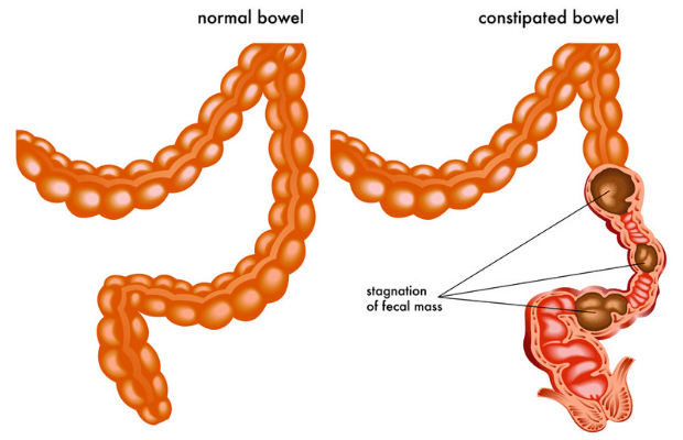 constipated_bowel_vs_normal_bowel