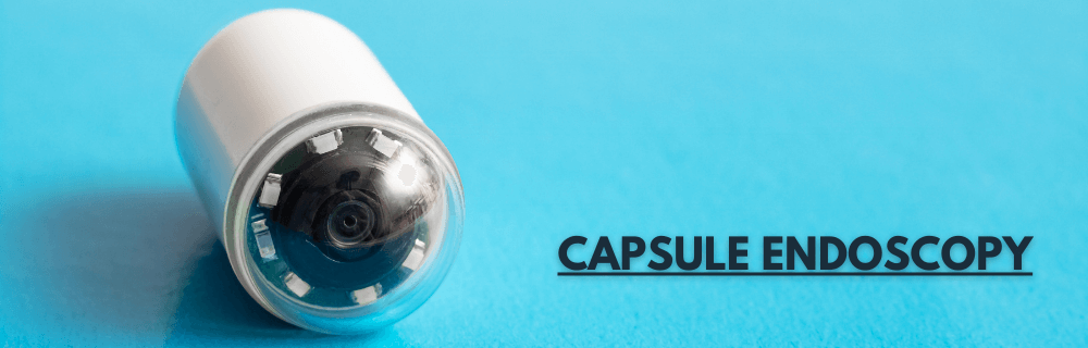 What is a Capsule Endoscopy and Why Would You Need One?