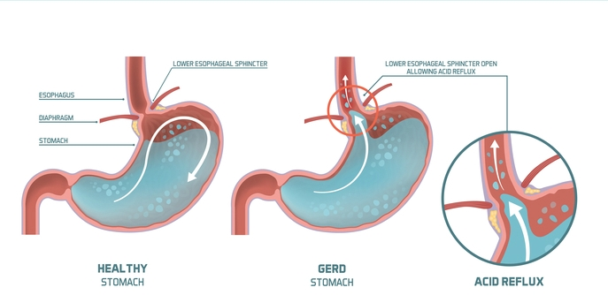 heartburn acid reflux - Gerd: Symptoms, Causes and Treatment in Cape Town