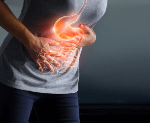 irritable bowel syndrome treatment - IBS Treatment: Causes and Treatment in Cape Town