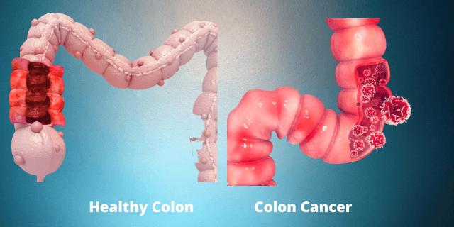 cancer screening colon cape town - Cancer Screening Cape Town: Why It's Important