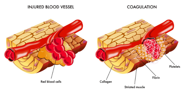 blood coagulation - Haemostasis Treatment in Cape Town