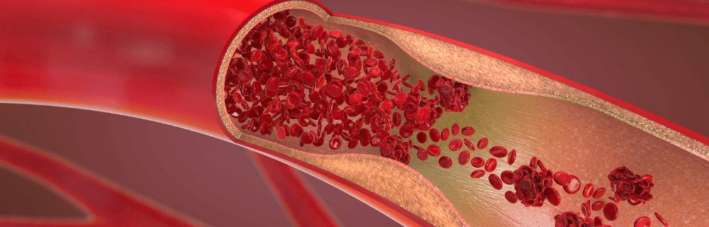 haemostasis cpt - Gastroenterology Blog by GI Doc Cape Town