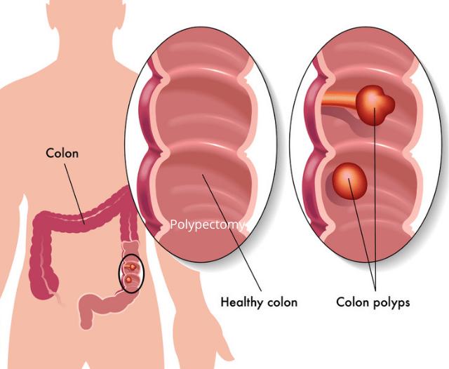 polypectomy emr - What is EMR Polypectomy?