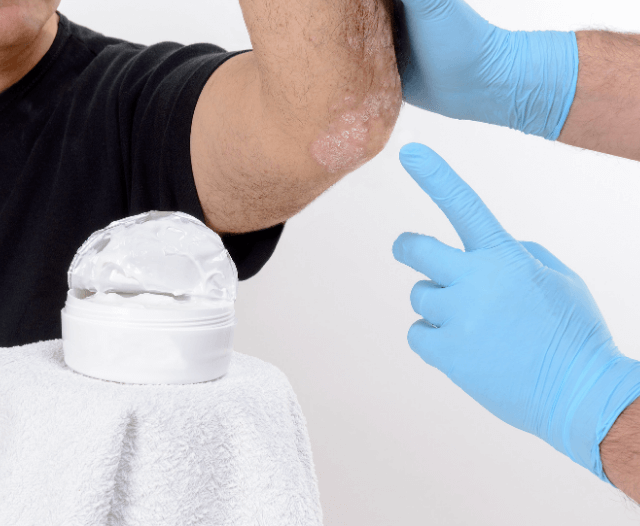 cancerous lesions - Treatment for Bleeding Lesions