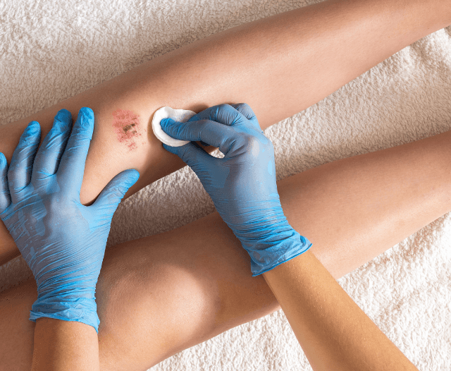 treatment of lesions - Treatment for Bleeding Lesions